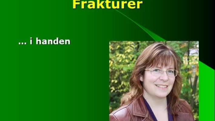 T8 Handkirurgi - Frakturer i handen C Ljungberg.mp4