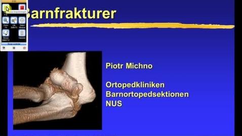 Miniatyr för inlägg T8 Ortopedi - Barnfrakturer PM 2011 31min.mp4