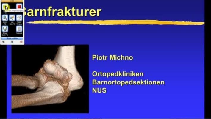 T8 Ortopedi - Barnfrakturer PM 2011 31min.mp4